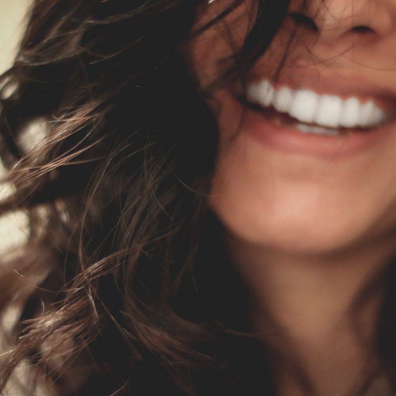 Woman Smiling Dermal Filler 01
